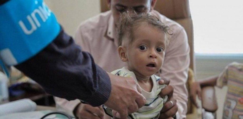 Anak-anak Yaman Butuh Uluran Tangan Internasional